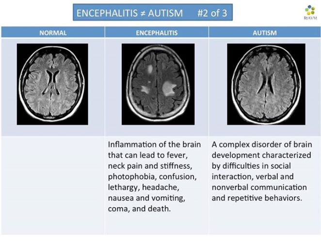 encephalitis is not autism 2 of 3