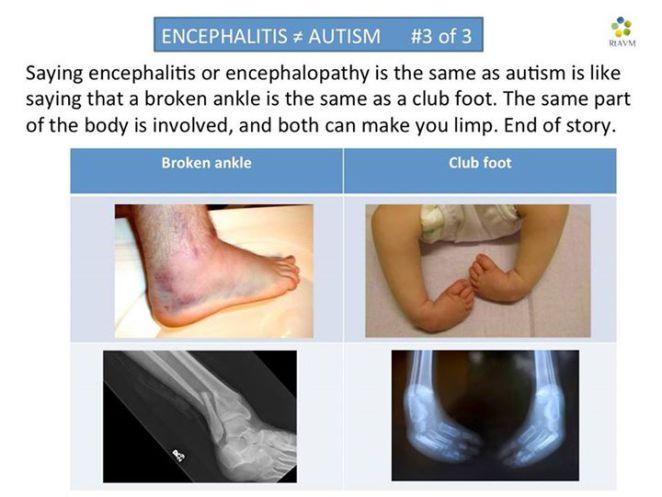 encephaltis is not autism 3 of 3